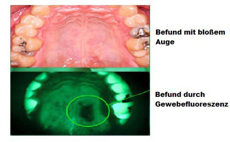Mundhöhlenkrebs Anfangsstadium Bilder